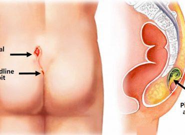 Παθήσεις του πρωκτού και αποτελεσματική – ανώδυνη θεραπεία